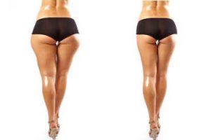 Tips para adelgazar piernas