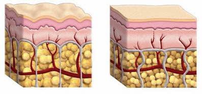 celulitis y sin celulitis piel