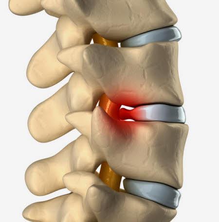 Protusion discal cuida tus articulaciones
