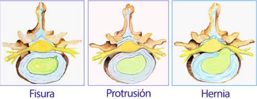 protusion-discal-cuidadin